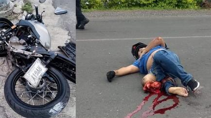 joven motociclista se amputa una pierna en accidente